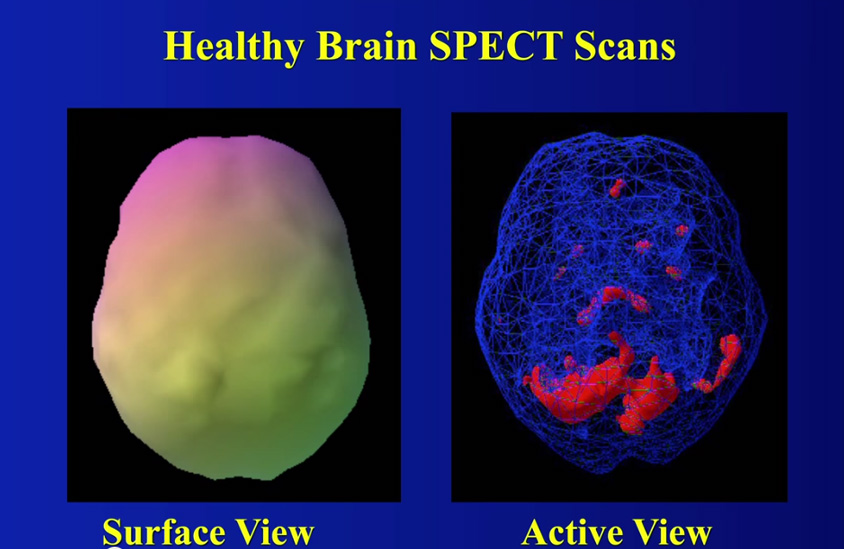 Daniel-Amen_healthy-SPECT-scan